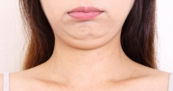 12_1脂肪吸引で小顔になれる!?事前に注意すべきポイント3つ! (1)