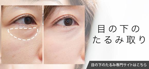 目の下のクマ・たるみ治療専門サイト