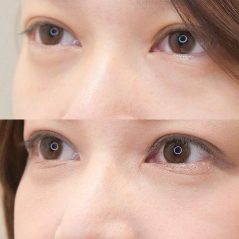 目の下のたるみ取り その他の症例写真