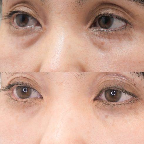 目の下のたるみ取り 症例写真