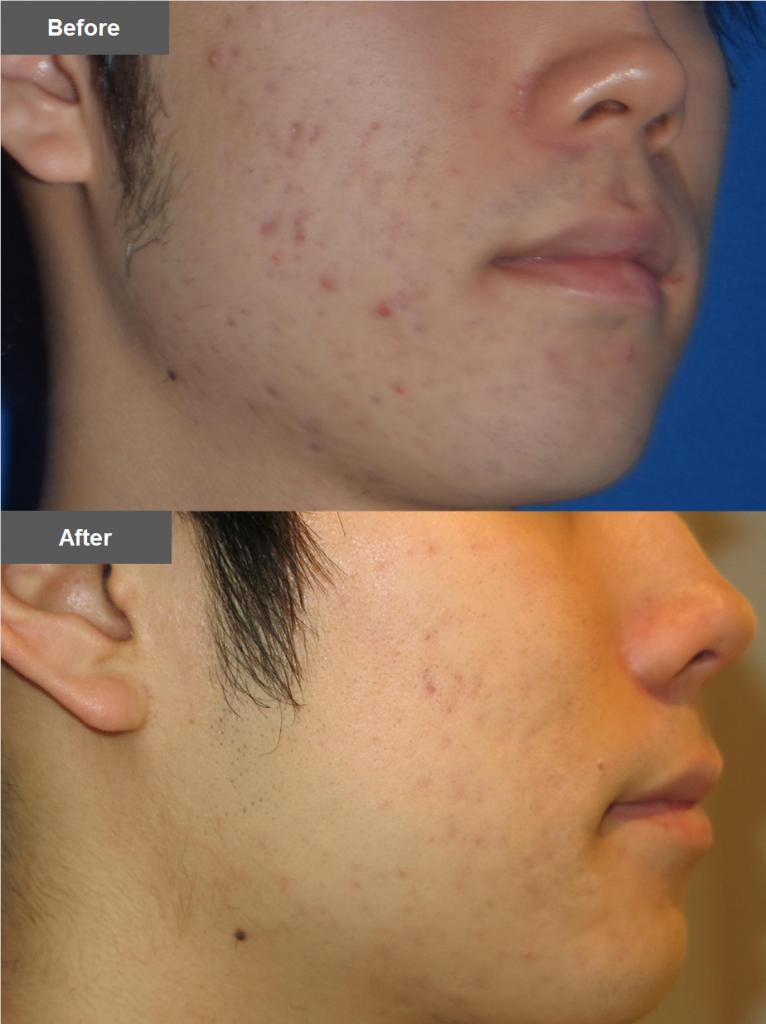 IPL光治療を使用した症例写真