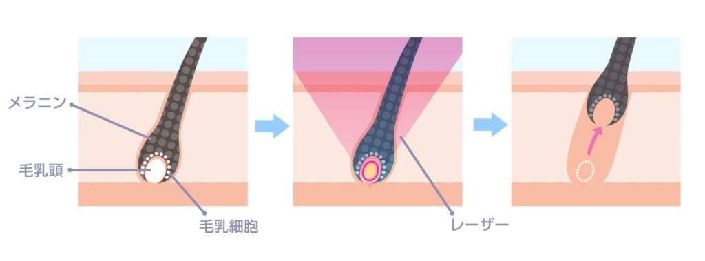 医療脱毛の仕組み