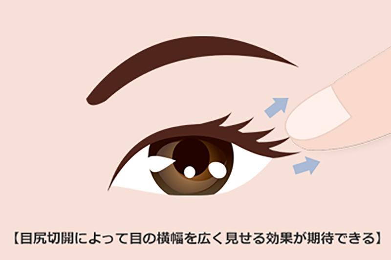 横幅 を 広げる 目 の 目の幅が狭くてお悩みの方へ 目の横幅を広くする方法|東京新宿の美容整形ならもとび美容外科クリニック