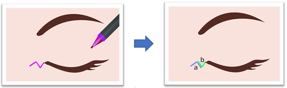 手術方法1