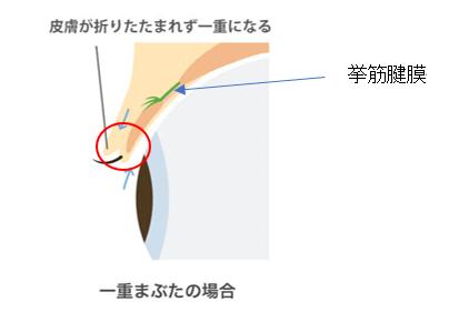 挙筋腱膜2