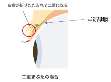 挙筋腱膜1
