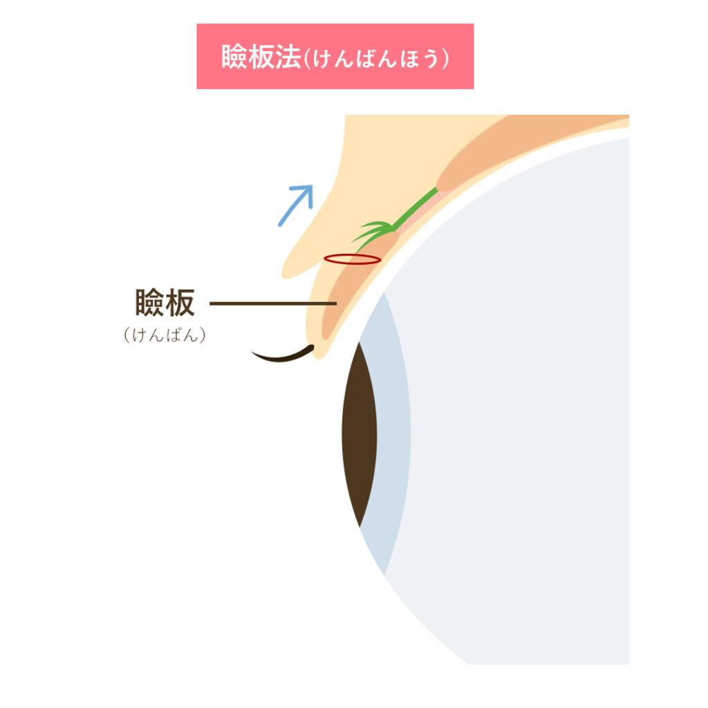 二重埋没法 瞼板法 イラスト