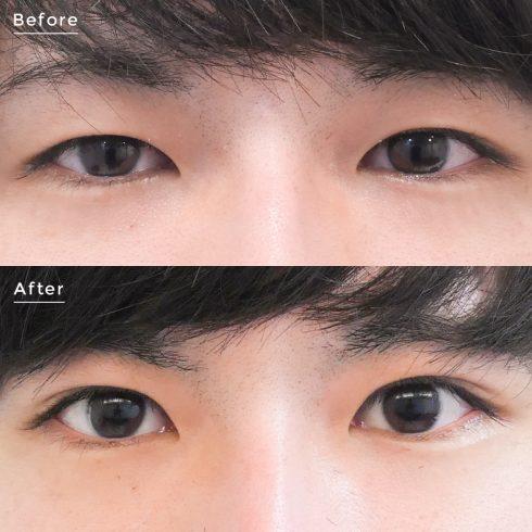 目元の整形 男性症例 症例写真