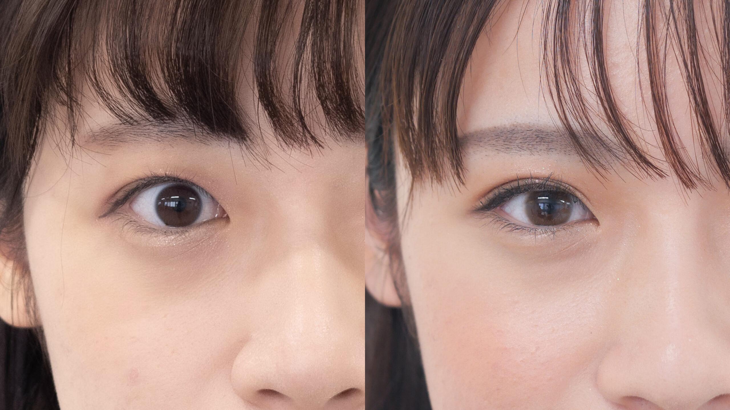 二重整形_埋没法プレミアム_鈴木医師の症例写真No.002