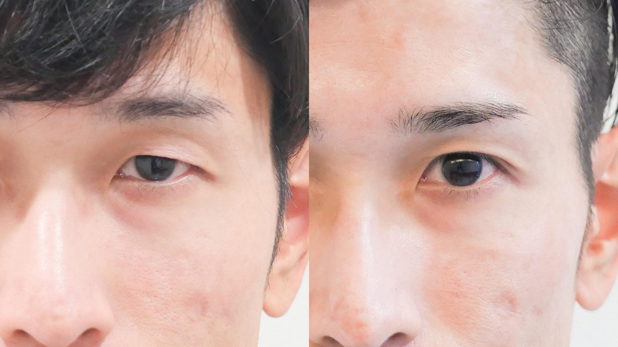 二重整形_埋没法プレミアム_鈴木医師の症例写真No.029