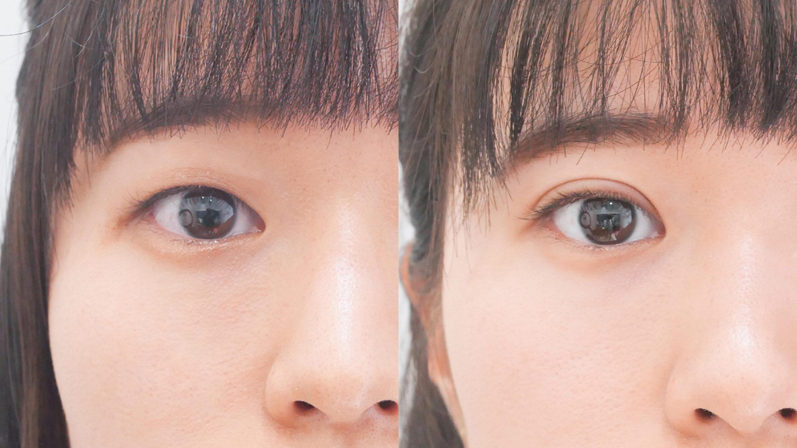 二重整形_埋没法プレミアム_大山医師の症例写真No.004