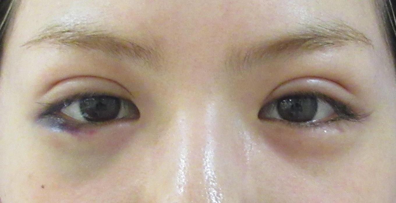 埋没法ベーシック+涙袋形成【症例No.238】