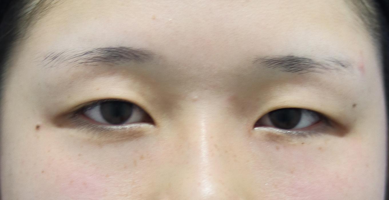 埋没法ベーシック【症例No.763】