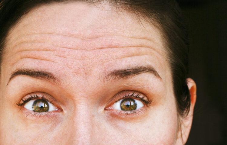 ヒアルロン酸注射はおでこのしわに効果あり?美容皮膚科医が解説!