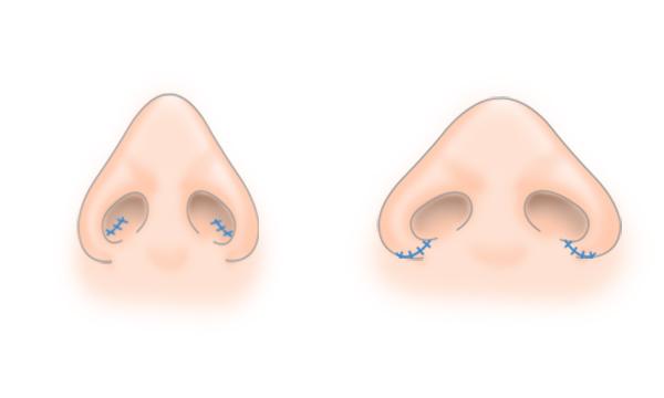 鼻翼縮小の手術方法 STEP1