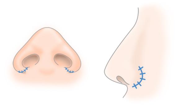 鼻翼縮小の手術方法 STEP5