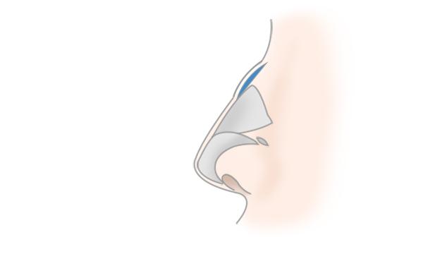 わし鼻修正・鼻骨削りの手術方法 STEP4