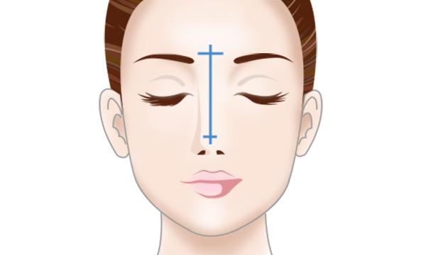 自家軟骨による隆鼻術の手術方法 STEP3