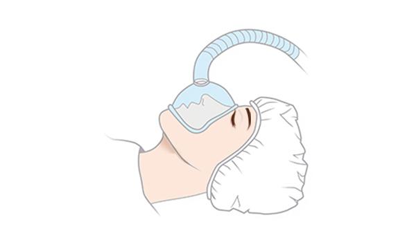 鼻中隔延長の手術方法 STEP1