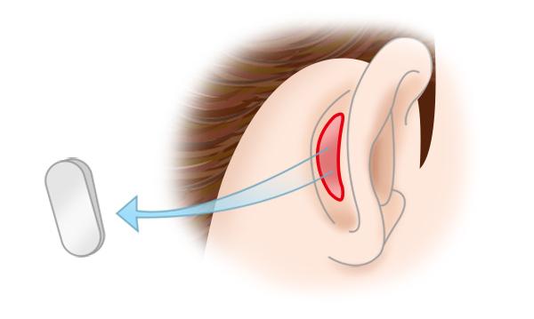 鼻中隔延長の手術方法 STEP2