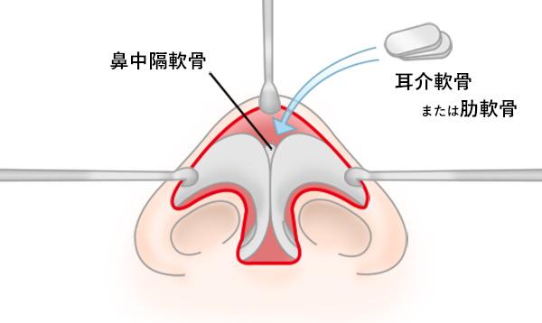 鼻中隔延長の手術方法 STEP5