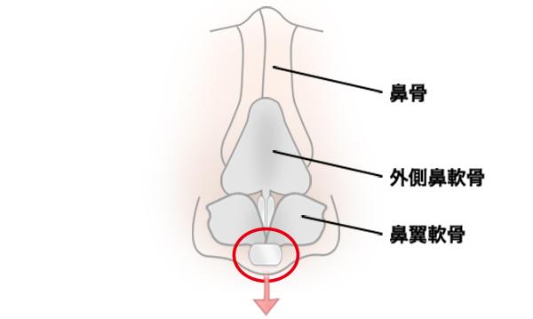 鼻中隔延長の手術方法 STEP6