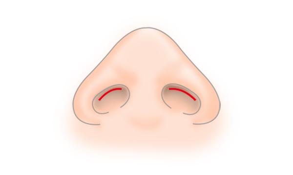 鼻孔縁形成の手術方法 STEP2