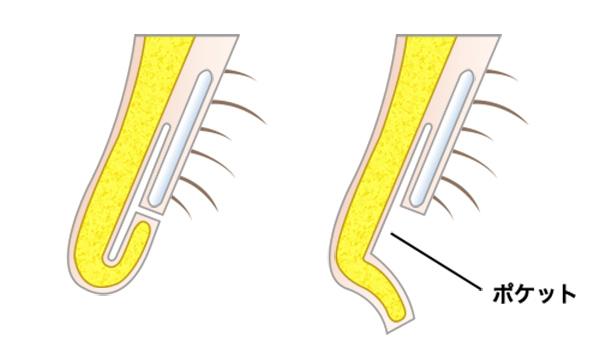 鼻孔縁形成の手術方法 STEP3