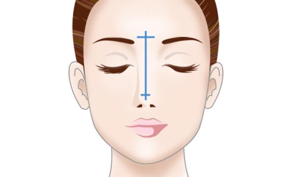 プロテーゼ隆鼻術の手術方法 STEP1