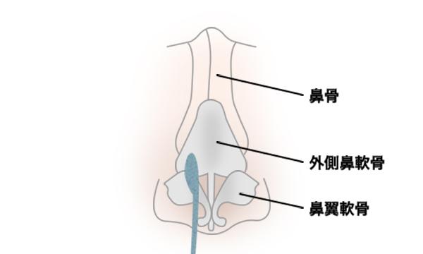 斜鼻修正の手術方法 STEP3