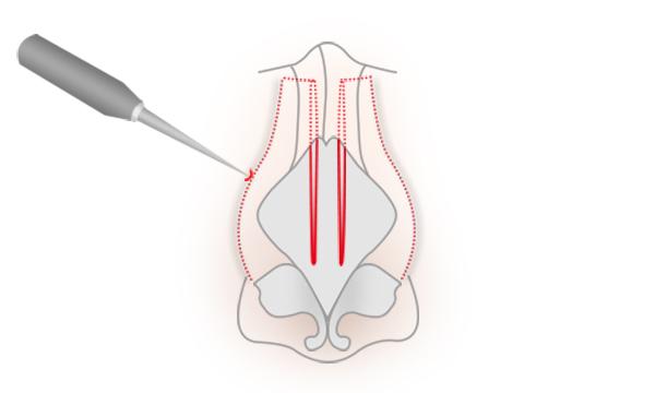 斜鼻修正の手術方法 STEP4