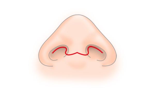 斜鼻修正の手術方法 STEP6