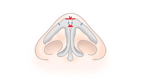 鼻尖形成・鼻尖縮小の手術方法 STEP5