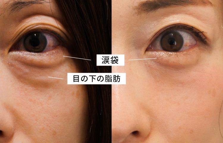 下眼瞼脱脂術で涙袋はなくならない 目の下のたるみと涙袋の関係を解説