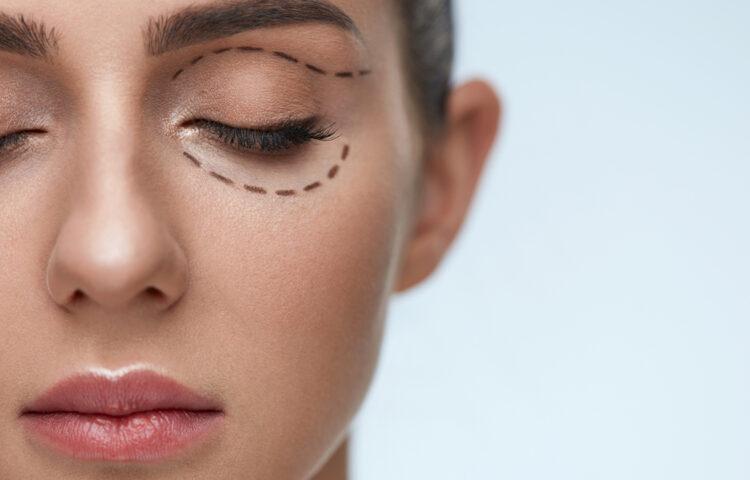 目の下のたるみを切る施術3つ