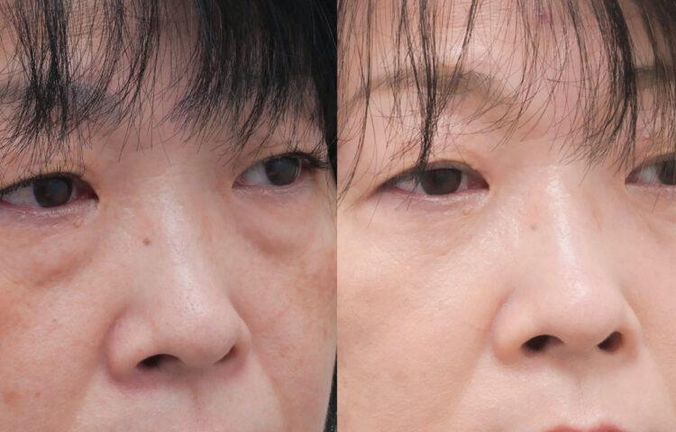 眼窩脂肪の除去のダウンタイムを解説!症状や期間は?