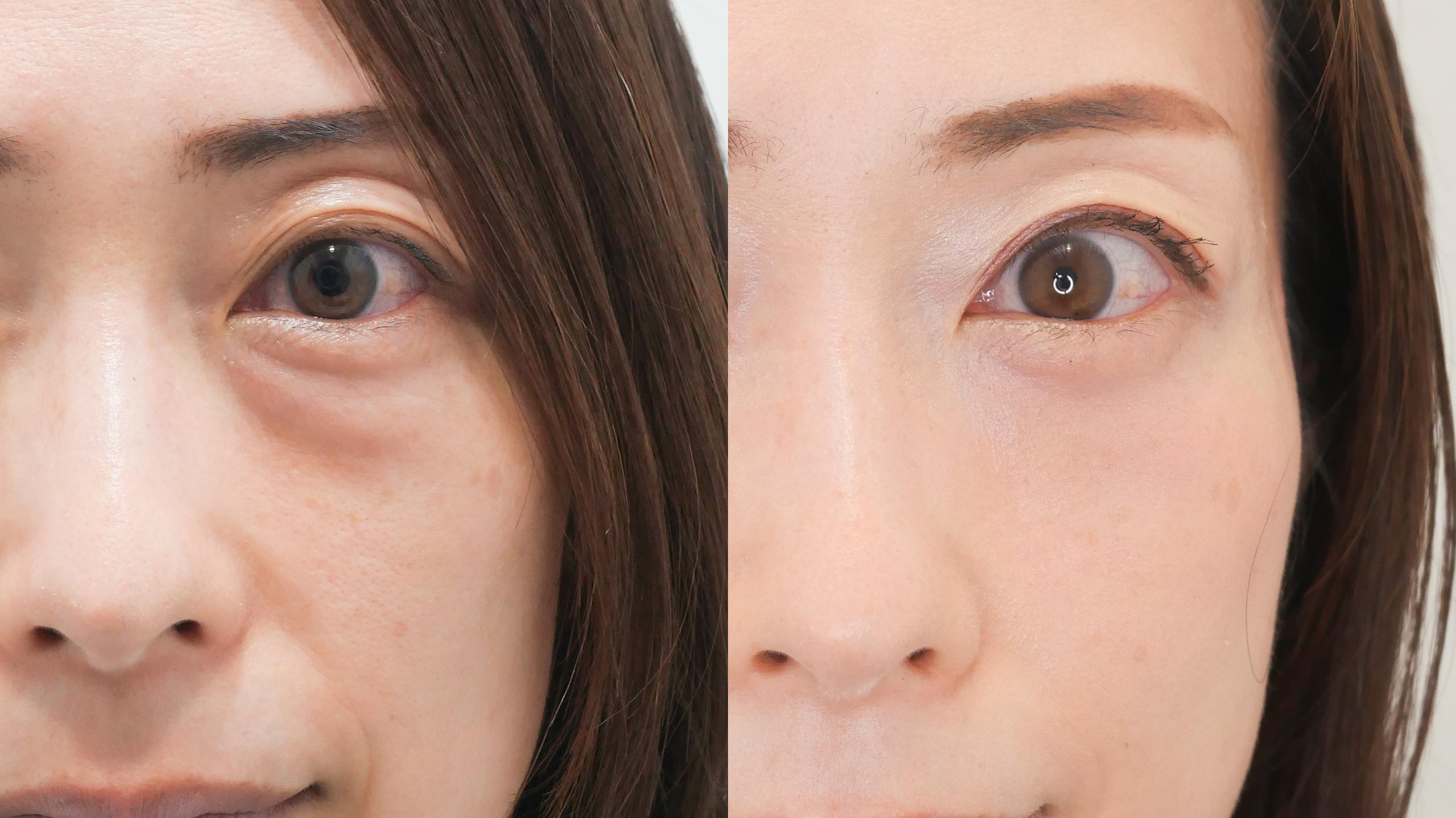 目の下のたるみ取り_下眼瞼脱脂術_鈴木医師の症例写真No.025