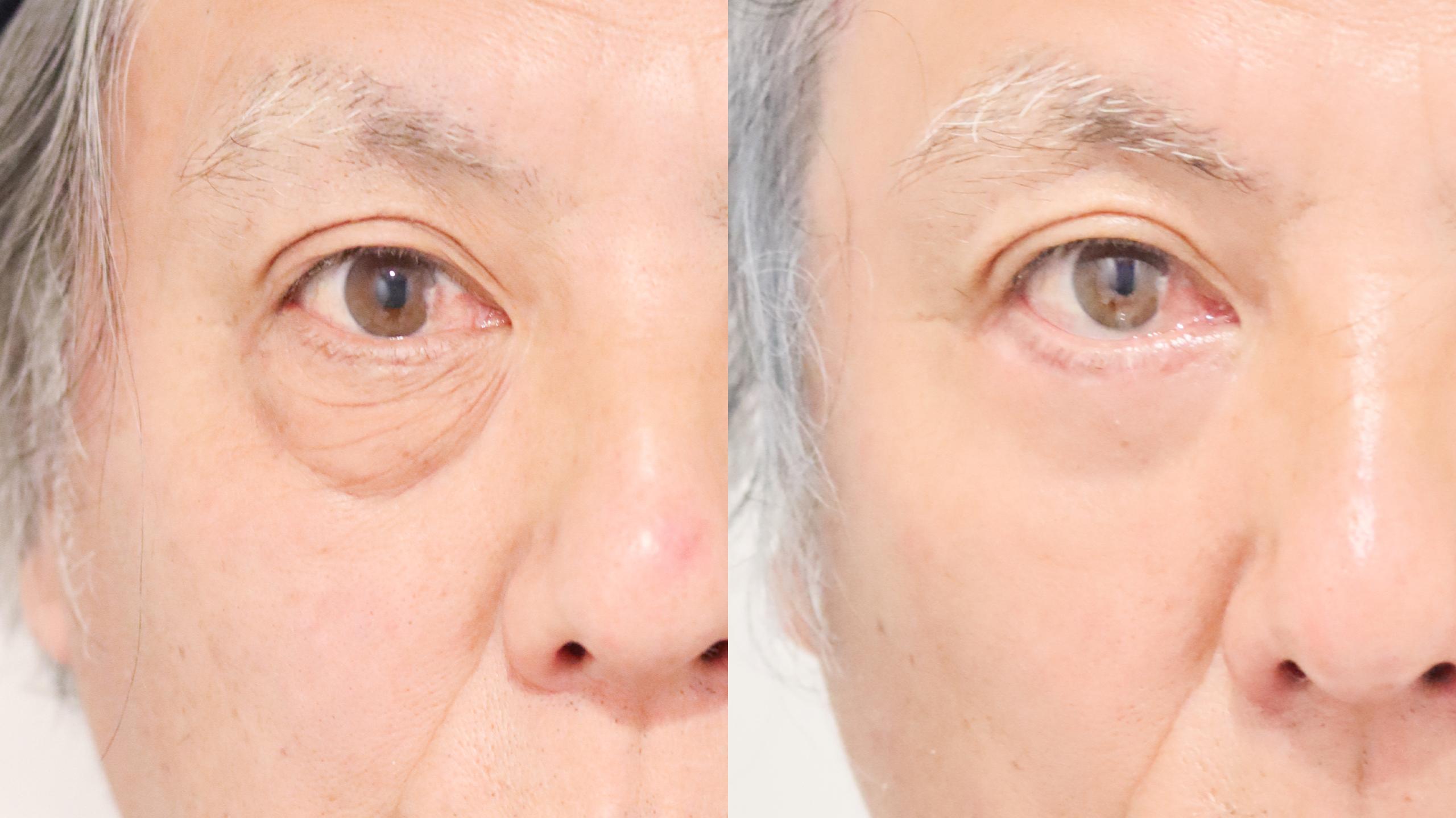 目の下のたるみ取り_下眼瞼脱脂術・除皺術_吉種医師の症例写真No.001